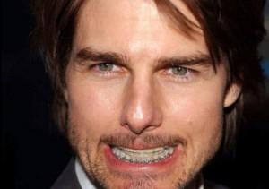 Photo de Tom Cruise avec un appareil dentaire